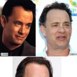 Tom hanks trapianto capelli