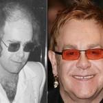 Elton John – Trapianto capelli