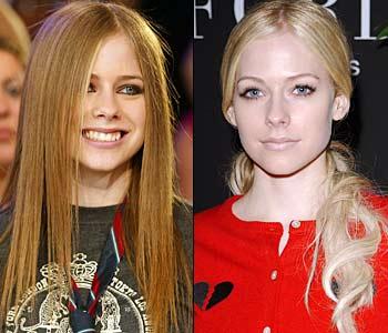 Avril Lavigne rinoplastica prima dopo 2