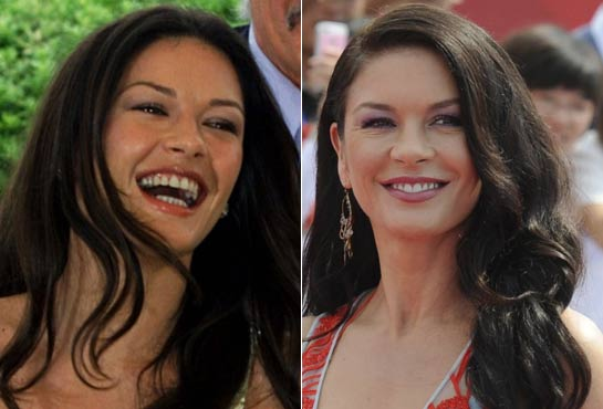 Catherine Zeta Jones denti rifatti