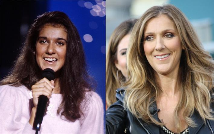 Celine Dion denti rifatti
