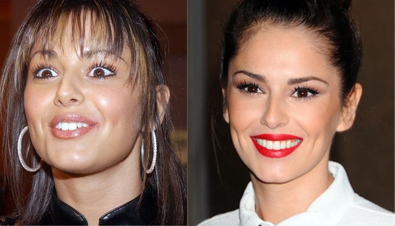 Cheryl Cole denti rifatti