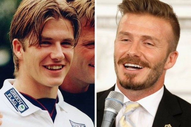 David Beckham denti rifatti