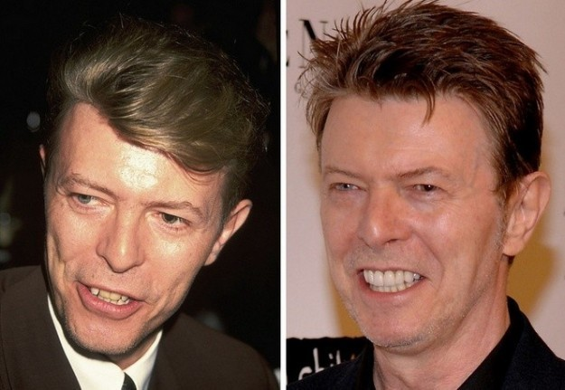 David Bowie denti rifatti