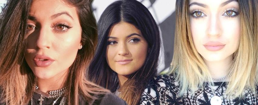 Kylie Jenner labbra rifatte 02