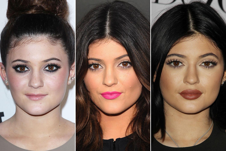 Kylie Jenner labbra rifatte