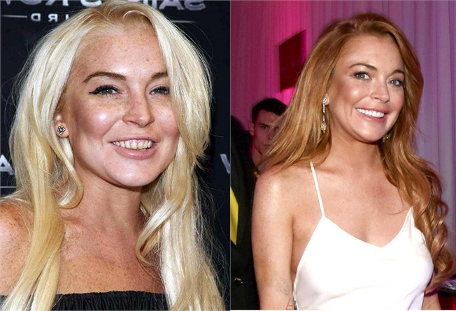 Lindsay Lohan denti rifatti