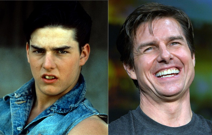 Tom Cruise denti rifatti