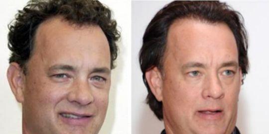 Tom Hanks: Il divo e il trapianto di capelli