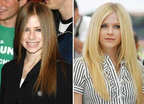 Avril Lavigne rinoplastica prima dopo