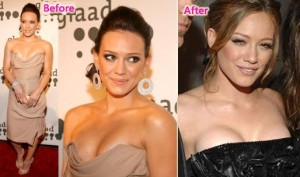 Hilary-duff-breast-implants