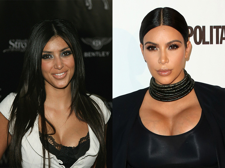 Kim Kardashian prima dopo