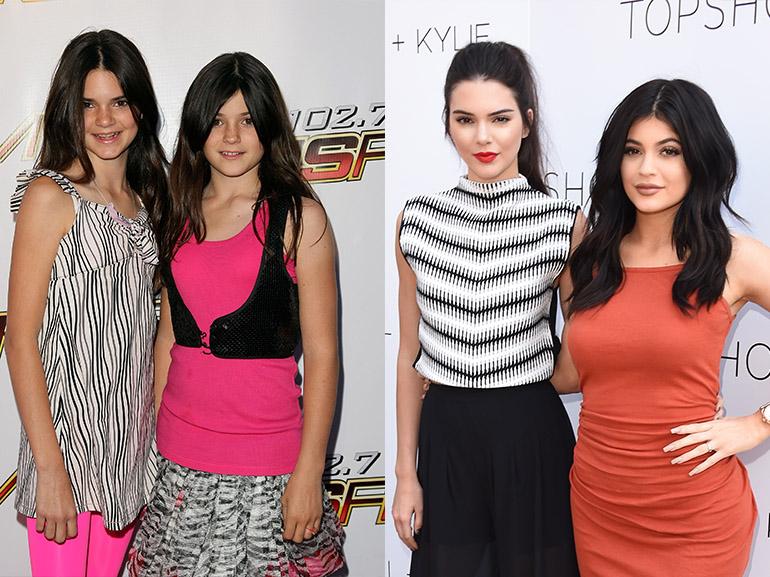 Kylie e Kendall Jenner prima dopo